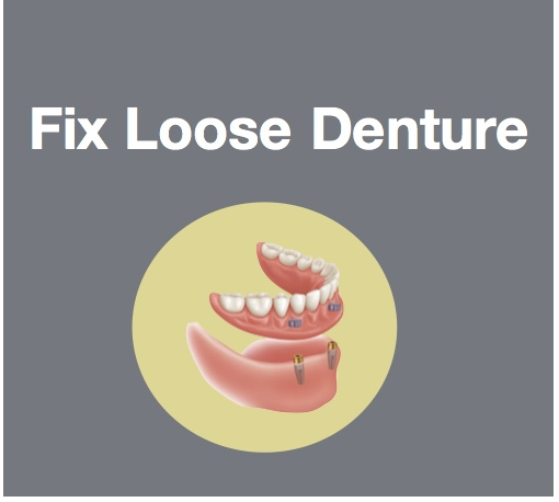 Fix Loose Dentures with Implants