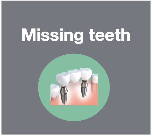 Replace missing teeth with implants